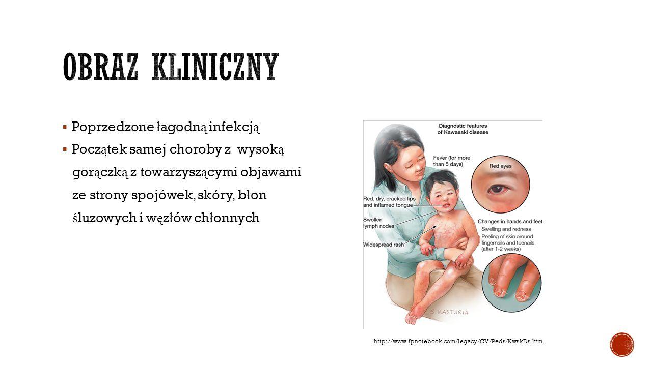 Obraz kliniczny Poprzedzone łagodną infekcją