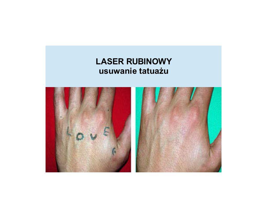 LASER RUBINOWY usuwanie tatuażu