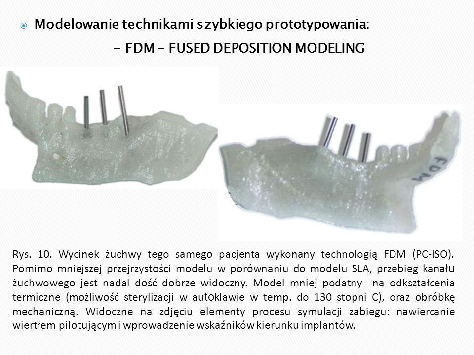 - FDM – FUSED DEPOSITION MODELING