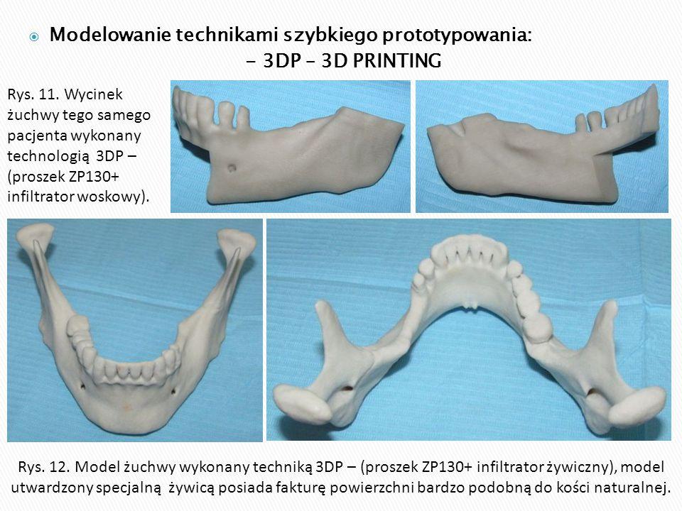 Modelowanie technikami szybkiego prototypowania: - 3DP – 3D PRINTING