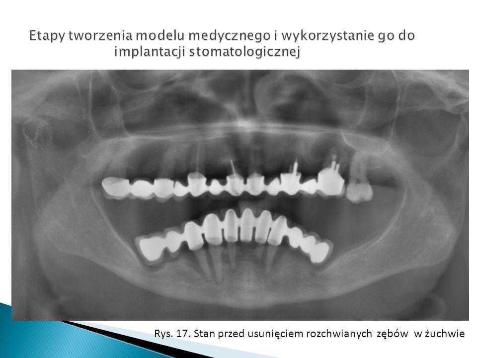 Etapy tworzenia modelu medycznego i wykorzystanie go do implantacji stomatologicznej