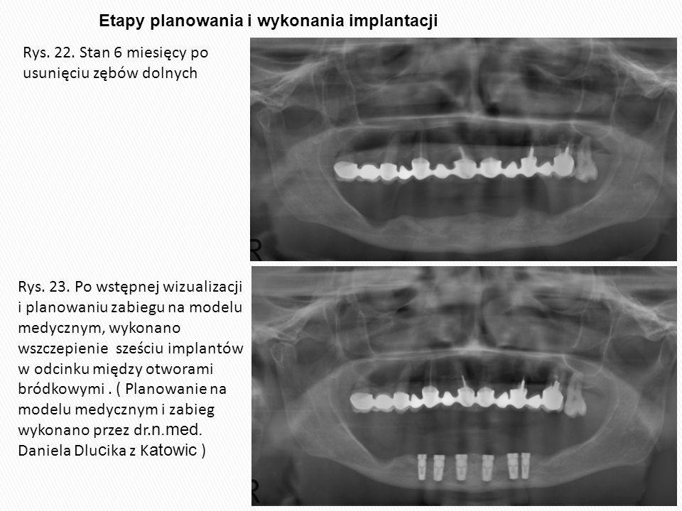 Etapy planowania i wykonania implantacji