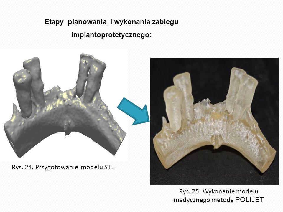 Etapy planowania i wykonania zabiegu implantoprotetycznego: