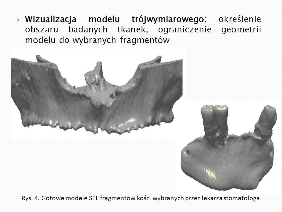 Wizualizacja modelu trójwymiarowego: określenie obszaru badanych tkanek, ograniczenie geometrii modelu do wybranych fragmentów
