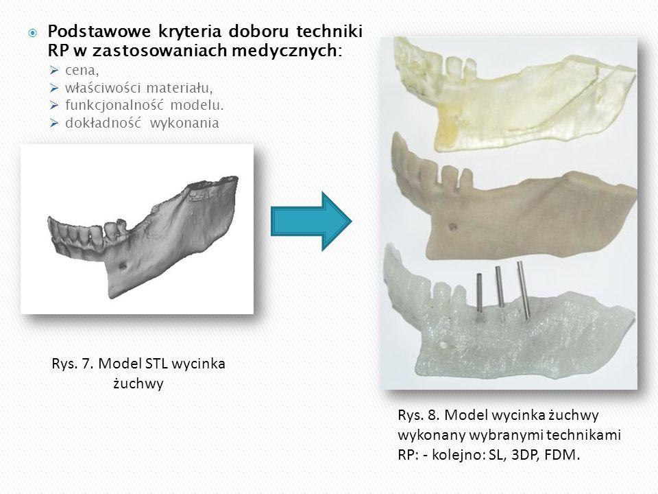 Rys. 7. Model STL wycinka żuchwy