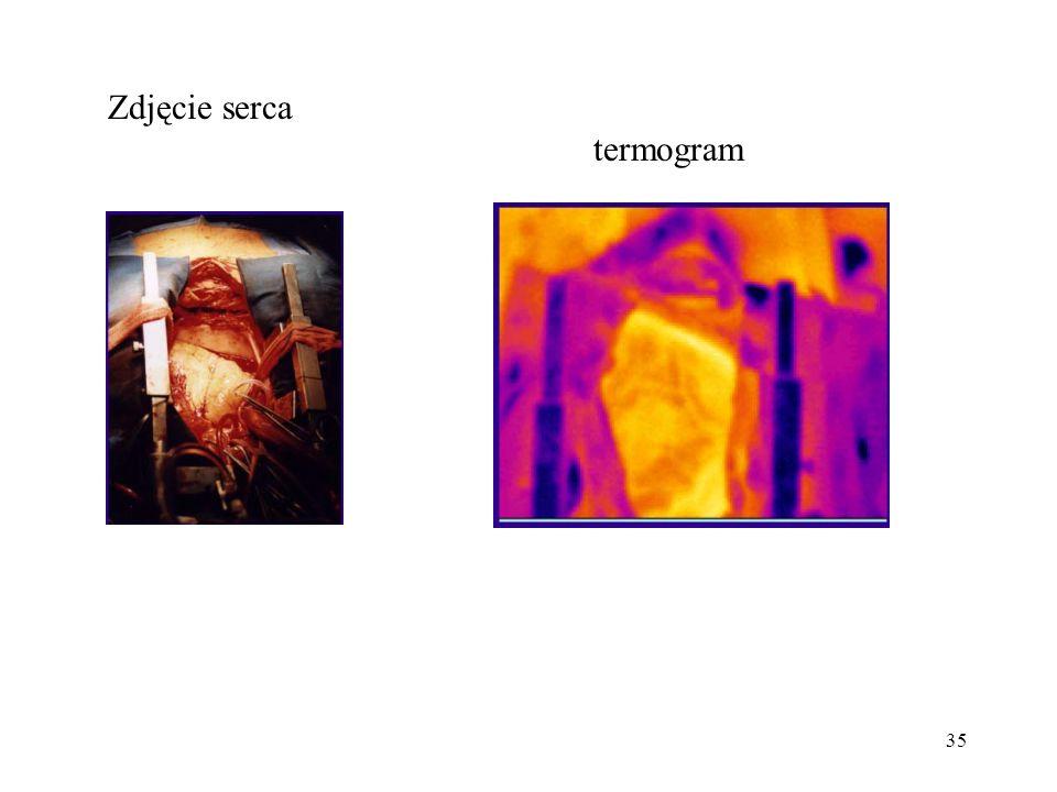 Zdjęcie serca termogram