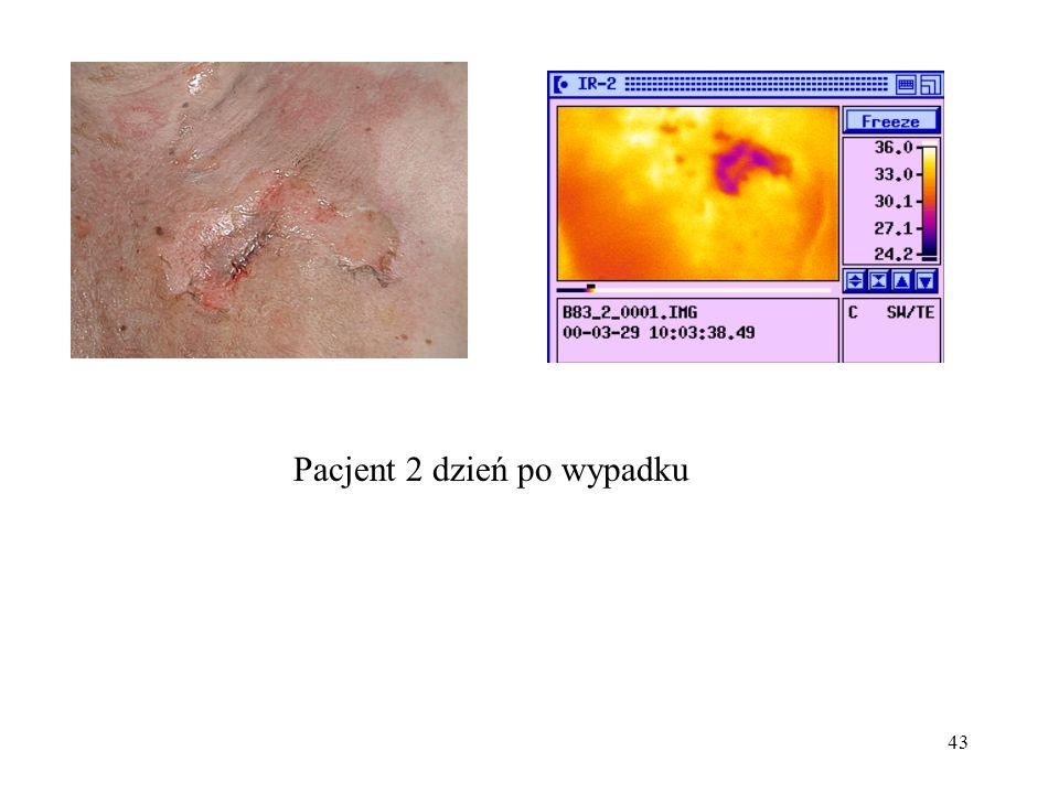 Pacjent 2 dzień po wypadku