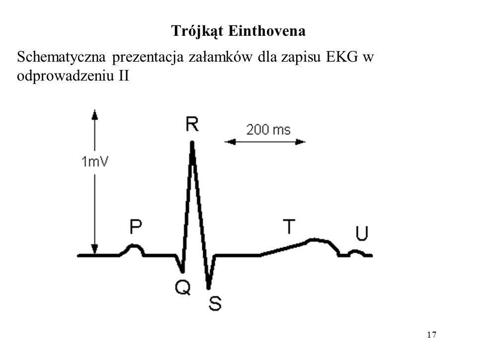 Trójkąt Einthovena Schematyczna prezentacja załamków dla zapisu EKG w odprowadzeniu II