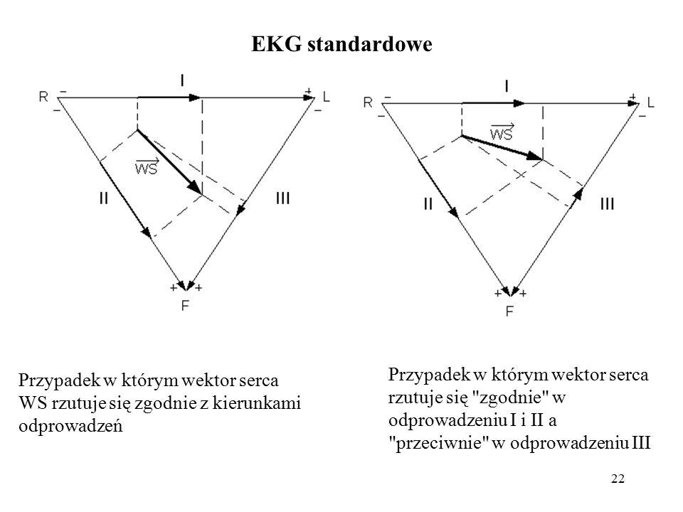 EKG standardowe Przypadek w którym wektor serca rzutuje się zgodnie w odprowadzeniu I i II a przeciwnie w odprowadzeniu III.