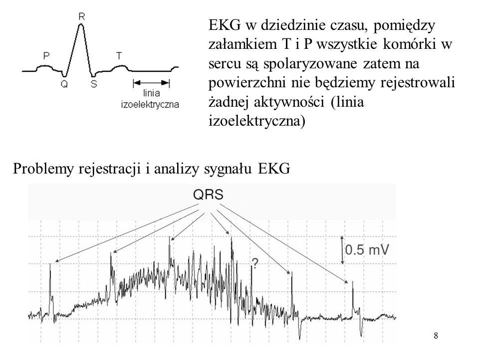 EKG w dziedzinie czasu, pomiędzy załamkiem T i P wszystkie komórki w sercu są spolaryzowane zatem na powierzchni nie będziemy rejestrowali żadnej aktywności (linia izoelektryczna)
