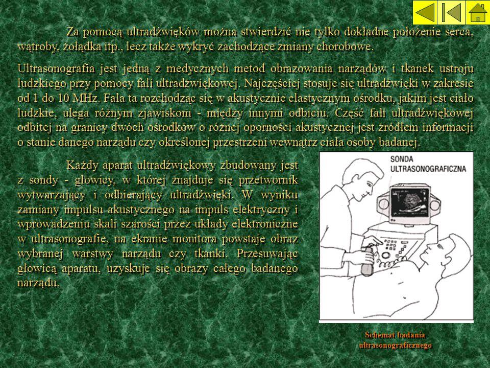 Schemat badania ultrasonograficznego