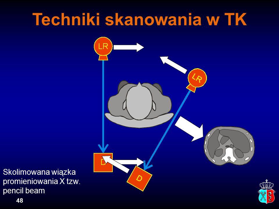Techniki skanowania w TK