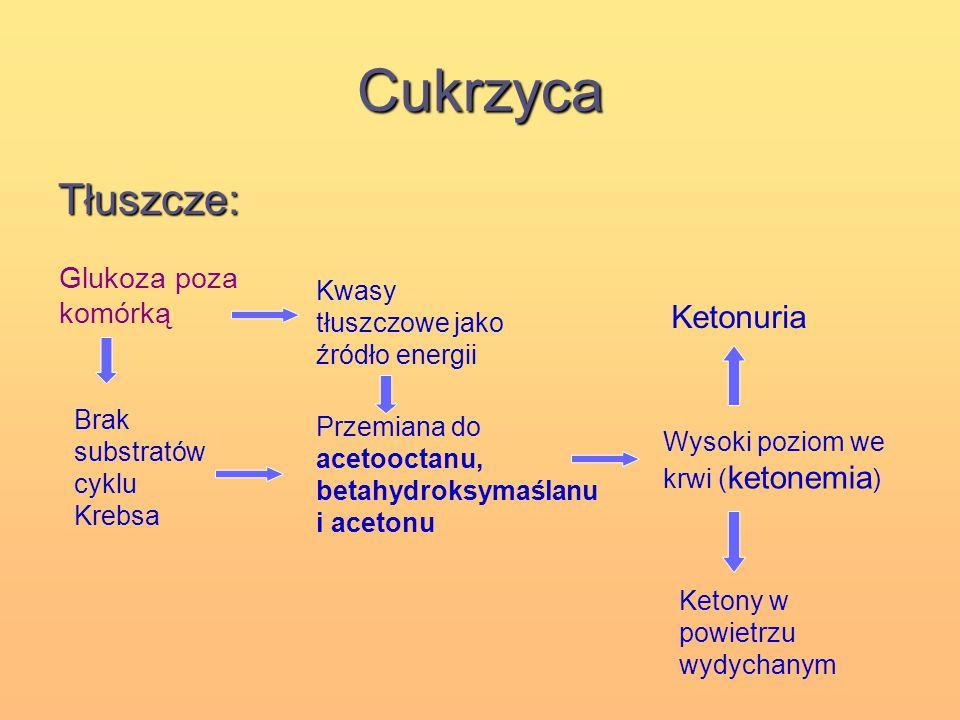 Cukrzyca Tłuszcze: Ketonuria Glukoza poza komórką