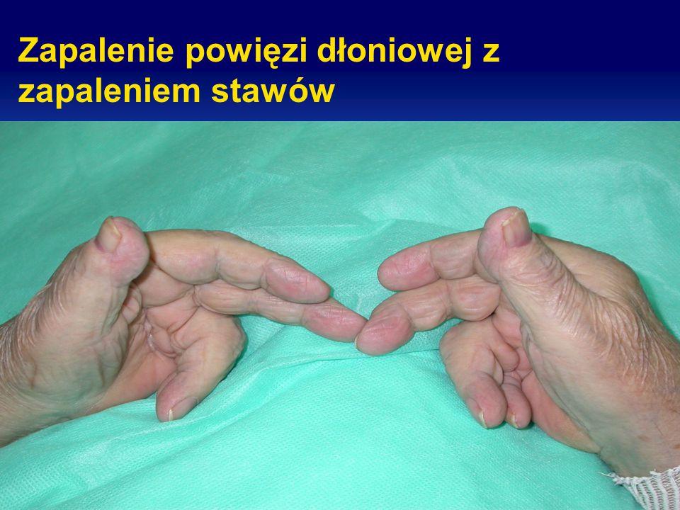 Zapalenie powięzi dłoniowej z zapaleniem stawów
