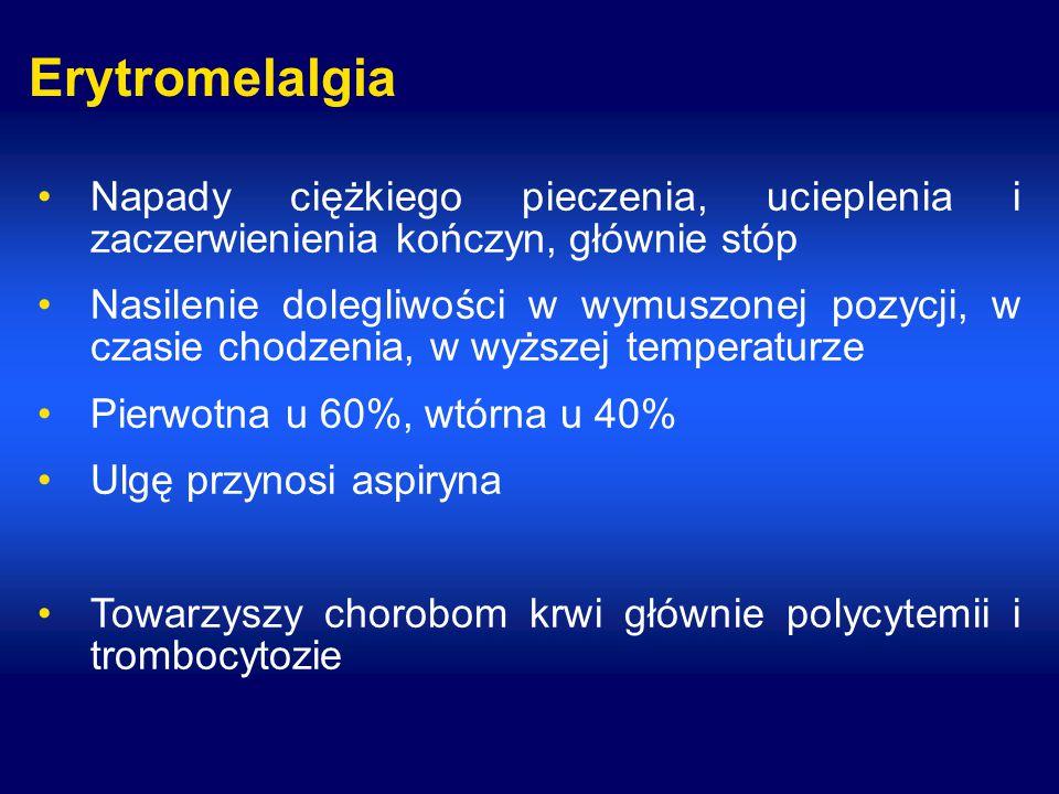 Erytromelalgia Napady ciężkiego pieczenia, ucieplenia i zaczerwienienia kończyn, głównie stóp.