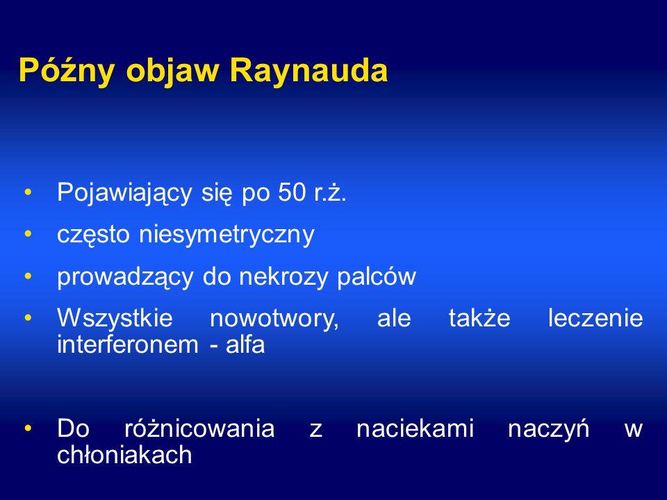 Późny objaw Raynauda Pojawiający się po 50 r.ż. często niesymetryczny