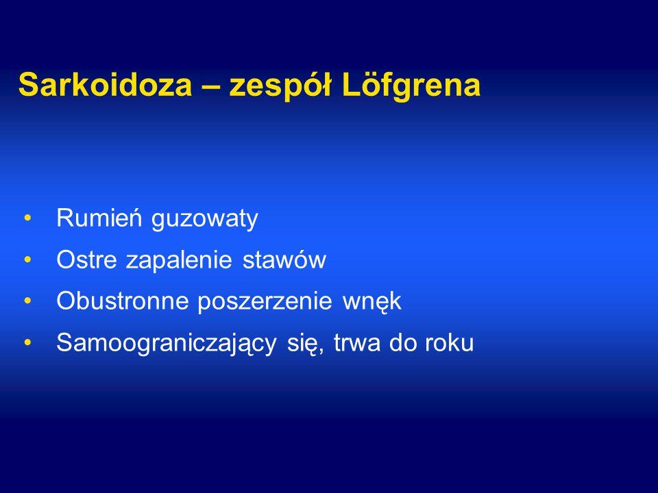 Sarkoidoza – zespół Löfgrena