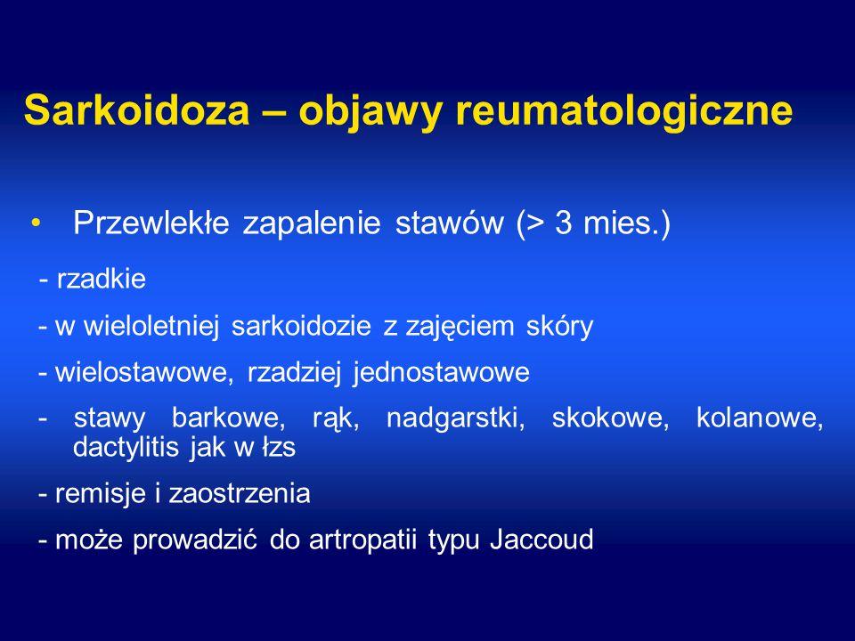Sarkoidoza – objawy reumatologiczne