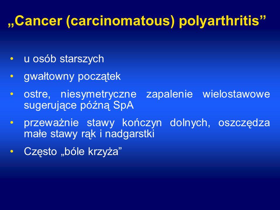 """Cancer (carcinomatous) polyarthritis"