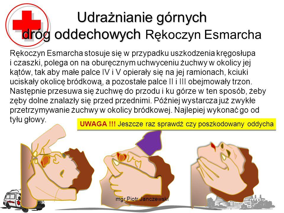 Udrażnianie górnych dróg oddechowych Rękoczyn Esmarcha