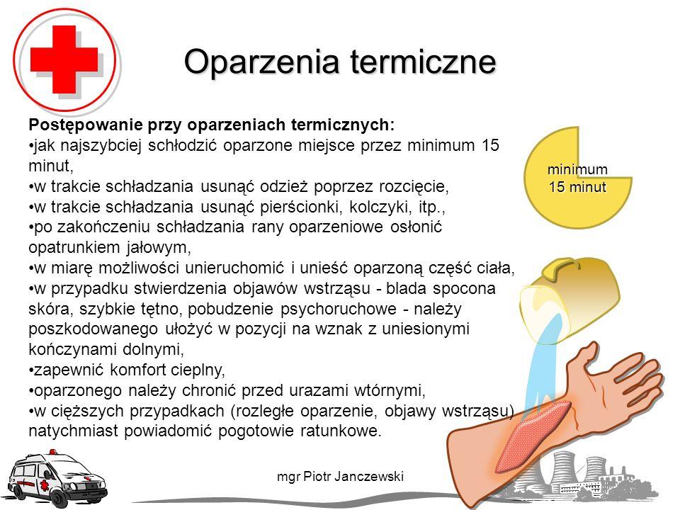 Oparzenia termiczne Postępowanie przy oparzeniach termicznych: