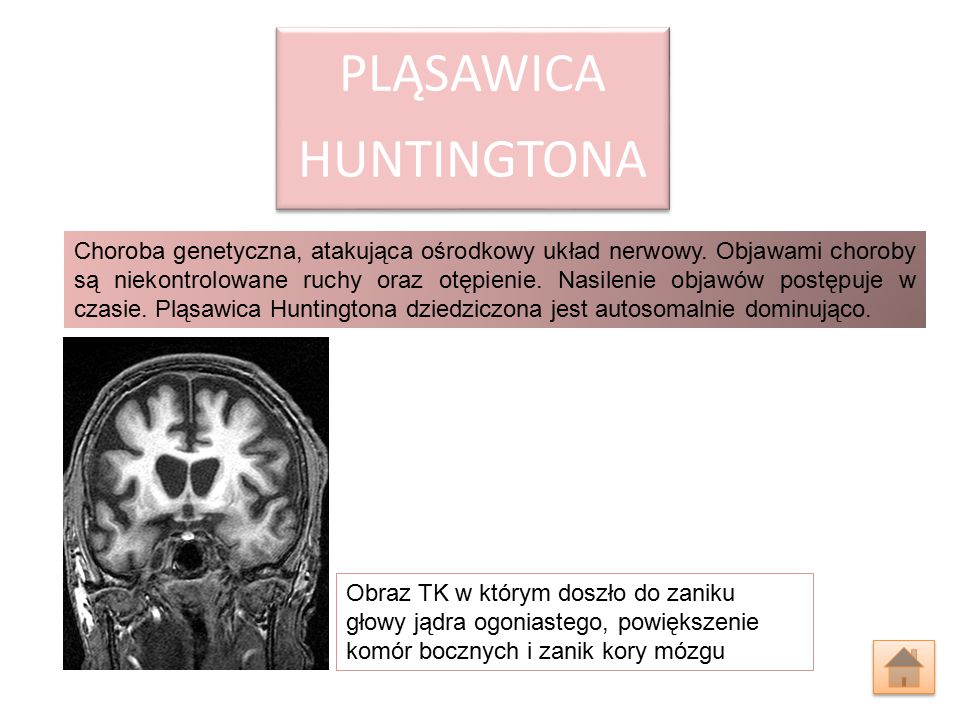 HUNTINGTONA PLĄSAWICA.