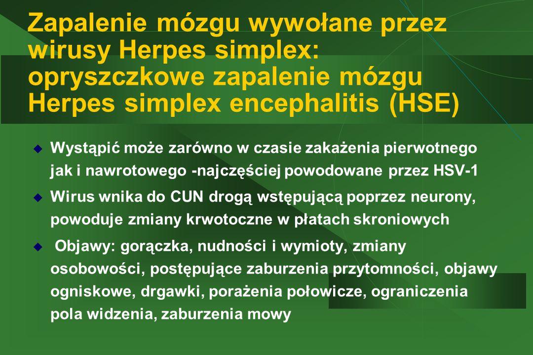 Zapalenie mózgu wywołane przez wirusy Herpes simplex: opryszczkowe zapalenie mózgu Herpes simplex encephalitis (HSE)