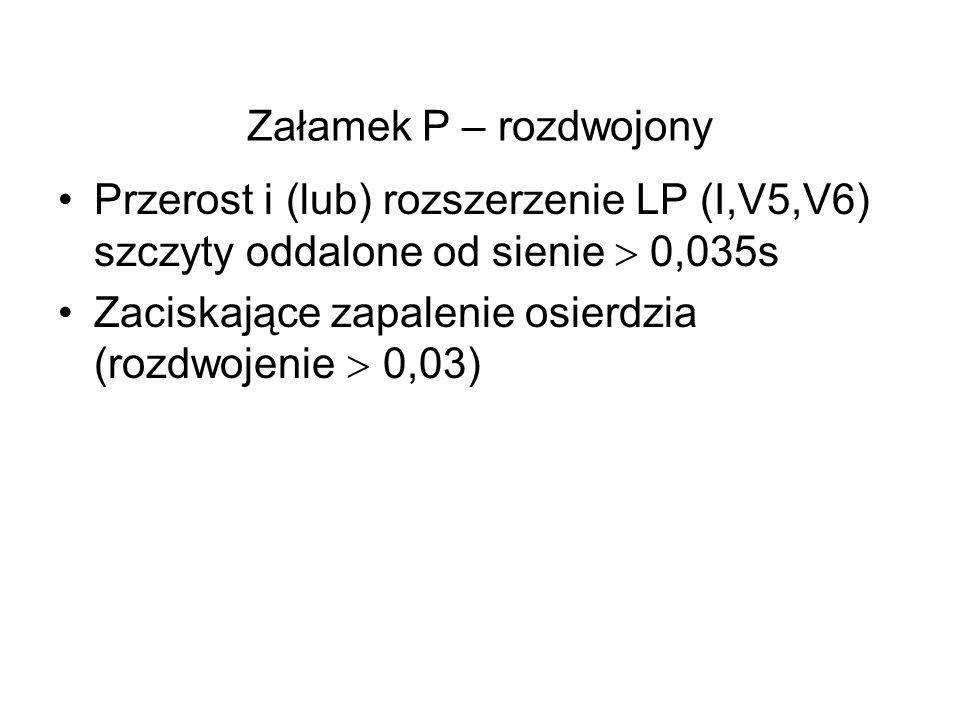 Załamek P – rozdwojony Przerost i (lub) rozszerzenie LP (I,V5,V6) szczyty oddalone od sienie  0,035s.