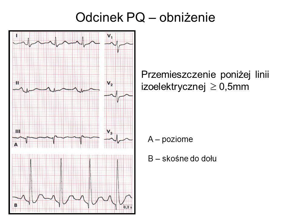 Odcinek PQ – obniżenie Przemieszczenie poniżej linii izoelektrycznej  0,5mm.