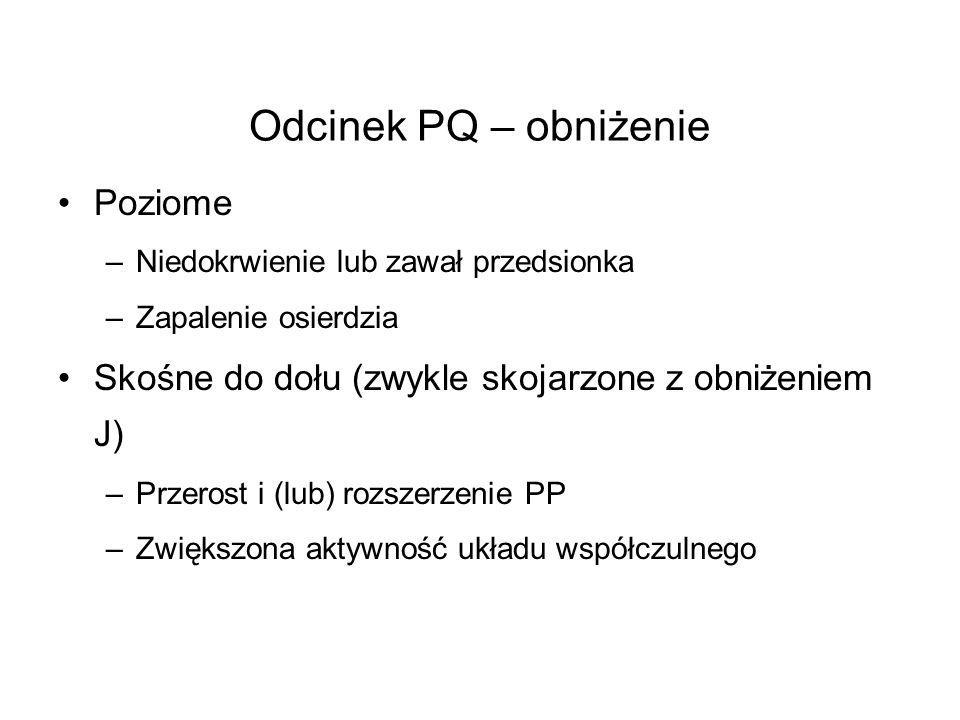 Odcinek PQ – obniżenie Poziome