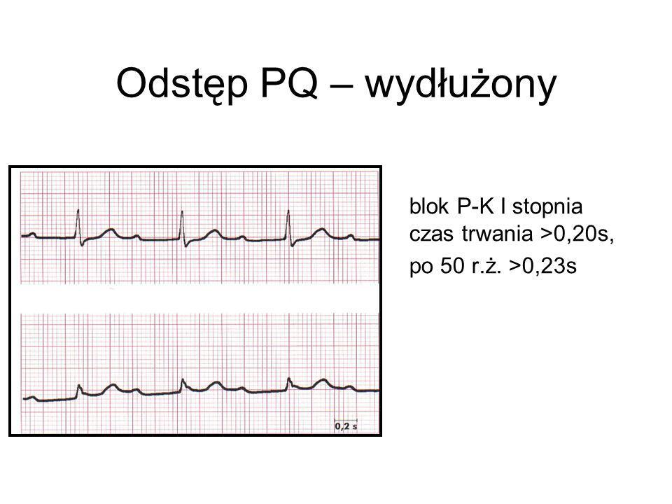 Odstęp PQ – wydłużony blok P-K I stopnia czas trwania >0,20s,