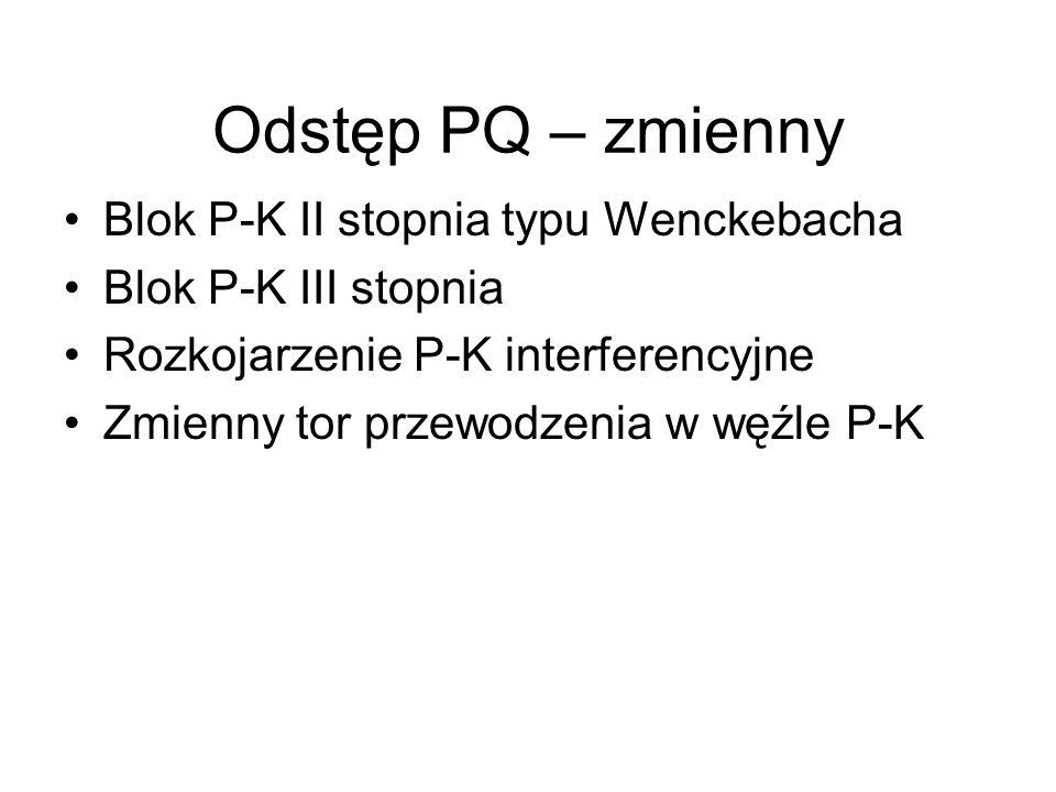 Odstęp PQ – zmienny Blok P-K II stopnia typu Wenckebacha