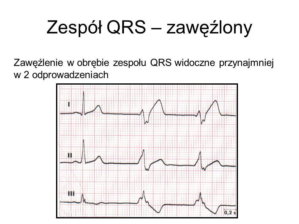 Zespół QRS – zawęźlony Zawęźlenie w obrębie zespołu QRS widoczne przynajmniej w 2 odprowadzeniach