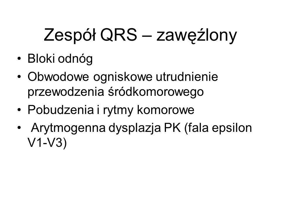 Zespół QRS – zawęźlony Bloki odnóg