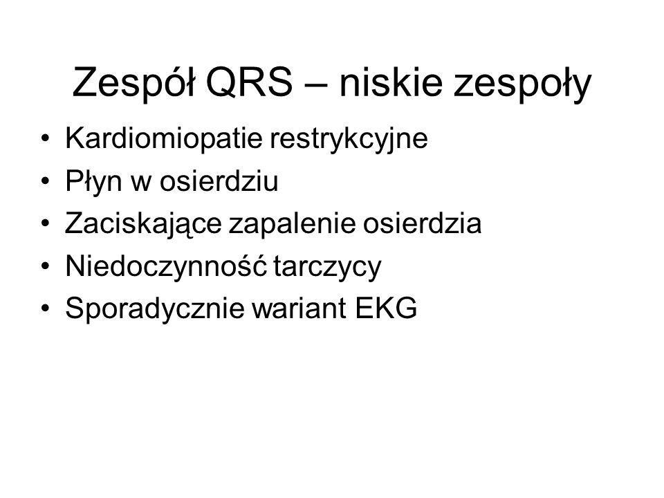 Zespół QRS – niskie zespoły