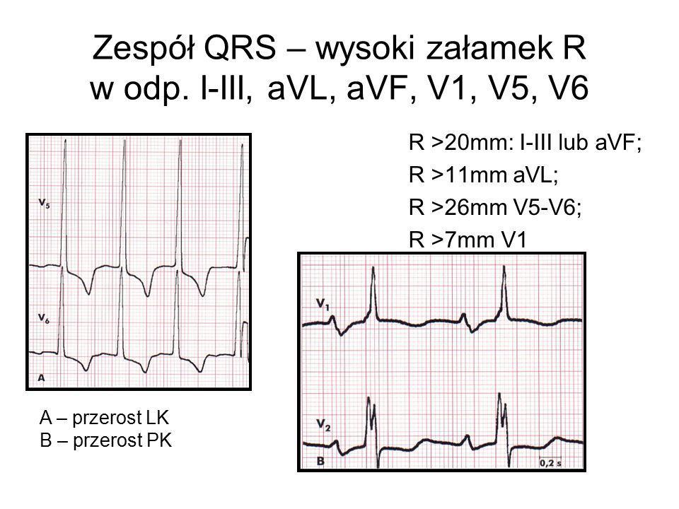 Zespół QRS – wysoki załamek R w odp. I-III, aVL, aVF, V1, V5, V6