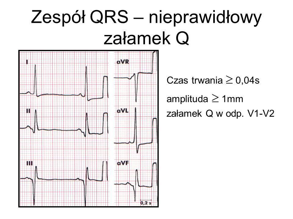 Zespół QRS – nieprawidłowy załamek Q
