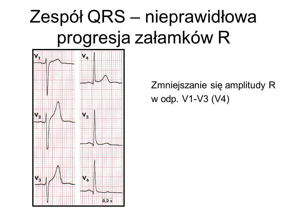 Zespół QRS – nieprawidłowa progresja załamków R