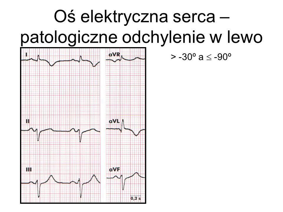 Oś elektryczna serca – patologiczne odchylenie w lewo
