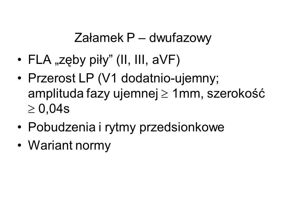"""Załamek P – dwufazowy FLA """"zęby piły (II, III, aVF) Przerost LP (V1 dodatnio-ujemny; amplituda fazy ujemnej  1mm, szerokość  0,04s."""