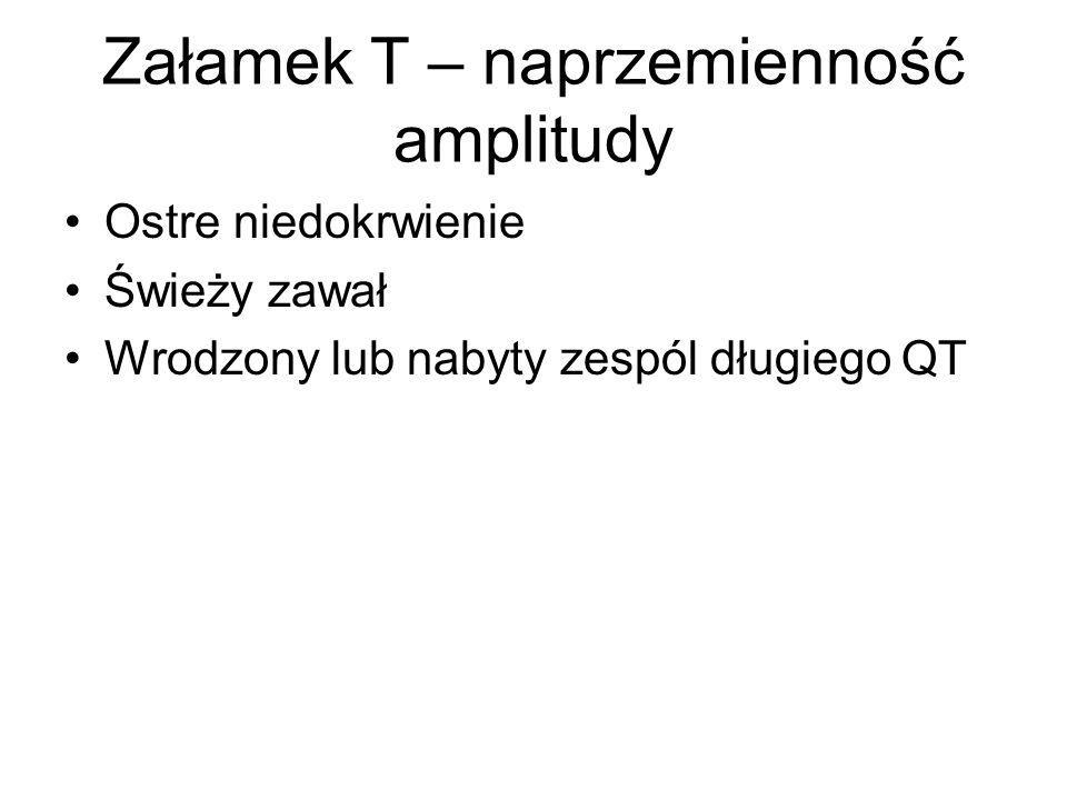 Załamek T – naprzemienność amplitudy