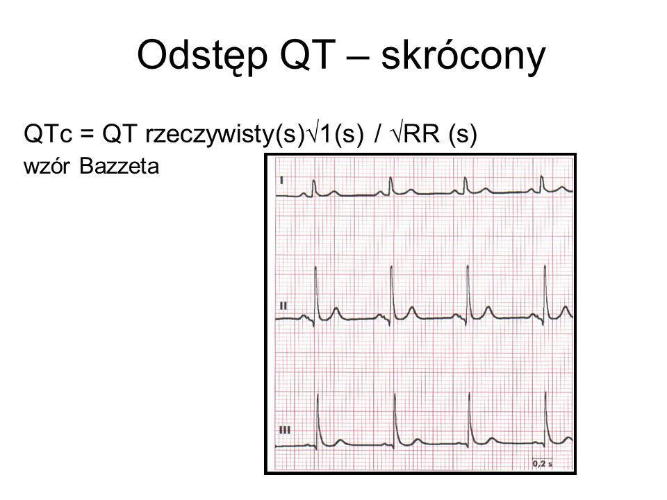 Odstęp QT – skrócony QTc = QT rzeczywisty(s)1(s) / RR (s)