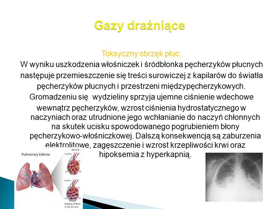 Gazy drażniące Toksyczny obrzęk płuc: