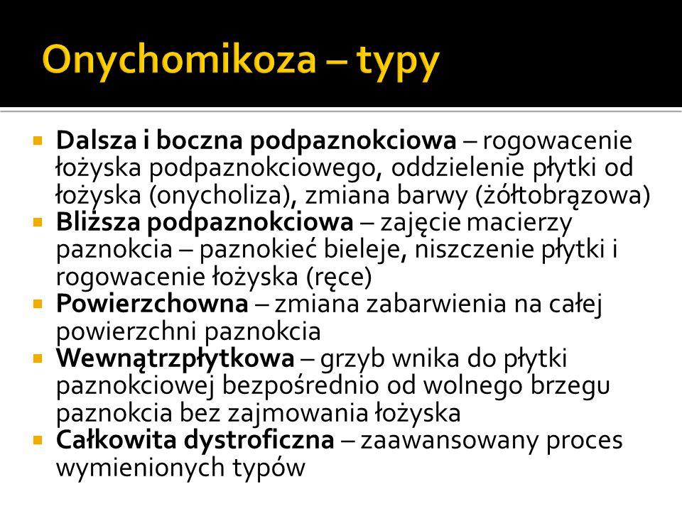 Onychomikoza – typy