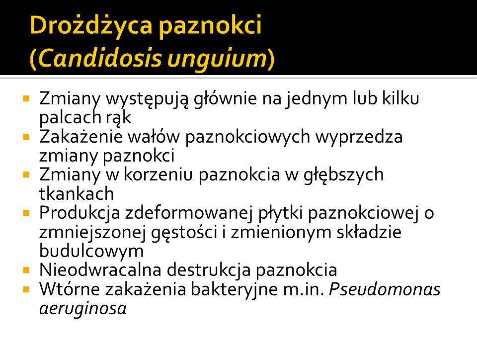 Drożdżyca paznokci (Candidosis unguium)