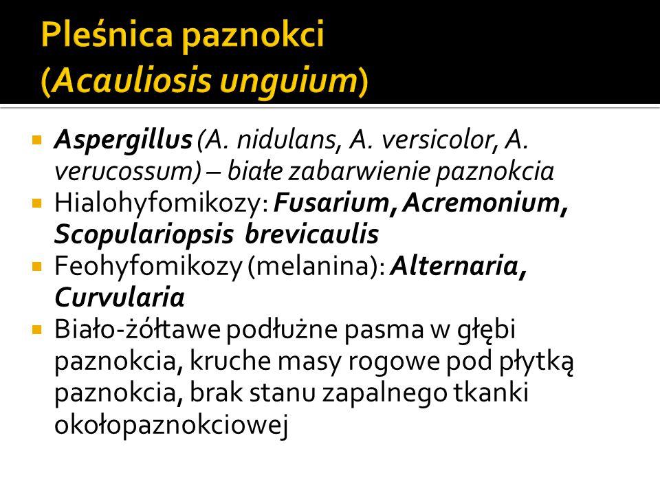 Pleśnica paznokci (Acauliosis unguium)