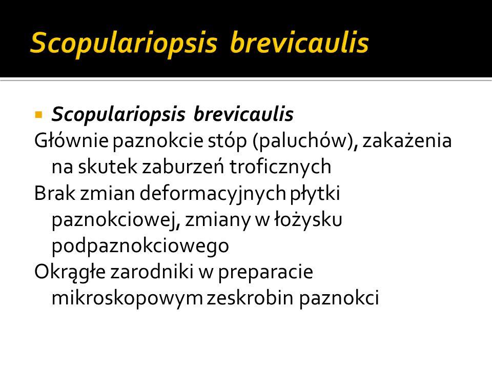 Scopulariopsis brevicaulis