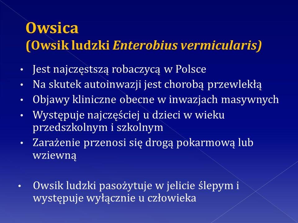 Owsica (Owsik ludzki Enterobius vermicularis)