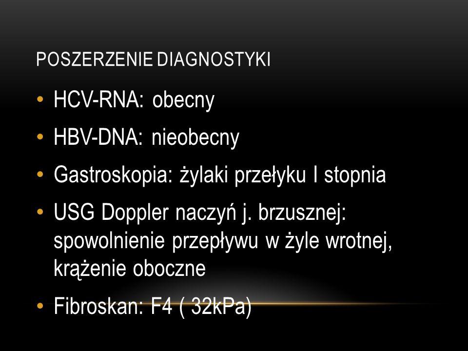 Poszerzenie diagnostyki