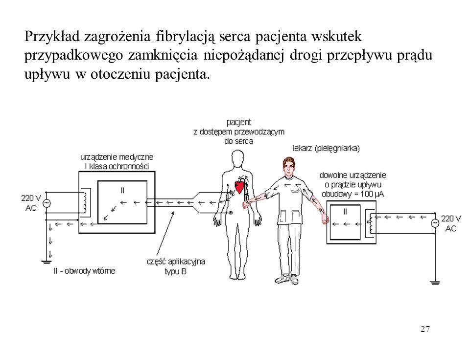 Przykład zagrożenia fibrylacją serca pacjenta wskutek przypadkowego zamknięcia niepożądanej drogi przepływu prądu upływu w otoczeniu pacjenta.